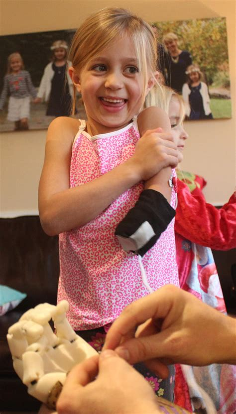 Holiday Miracle – 3D Printed Myoelectric Arm Allows Girl